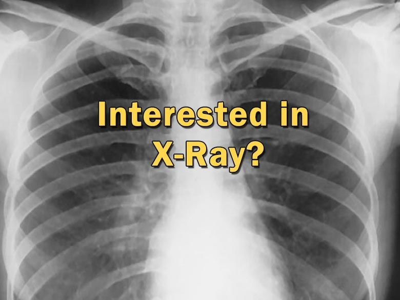 "The text ""Interested in X-ray?"" over a chest x-ray"